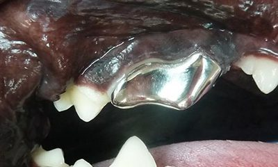 Titanium crown fractured tooth